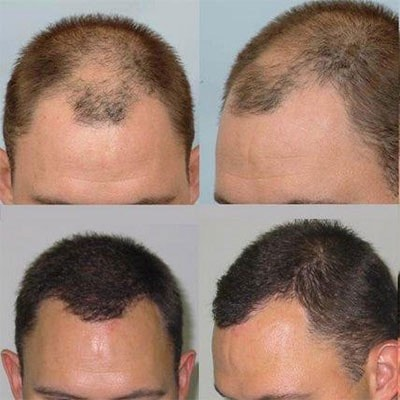 Is hair transplant the best option