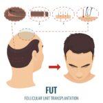 FUT Hair Transplantation – Everything You Should Know (1)